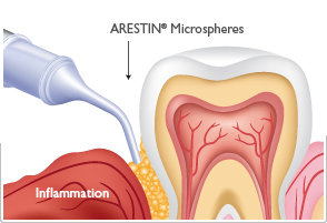 SRP treatment with Arestin